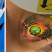 Keratoconus Treatment Images in a collage