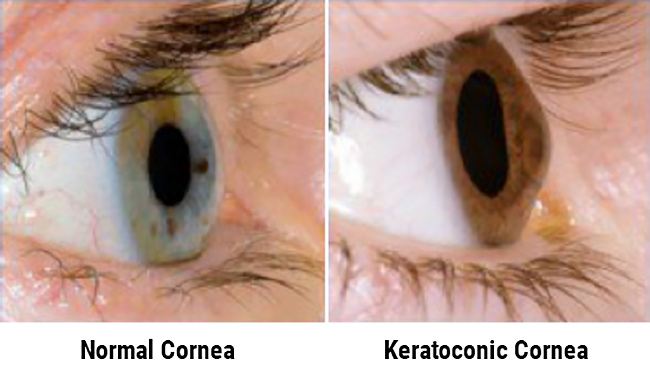 Normal Cornea Vs. Keratoconic Cornea