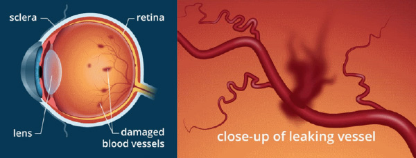 Damaged blood vessels and close-up of leaking vessel