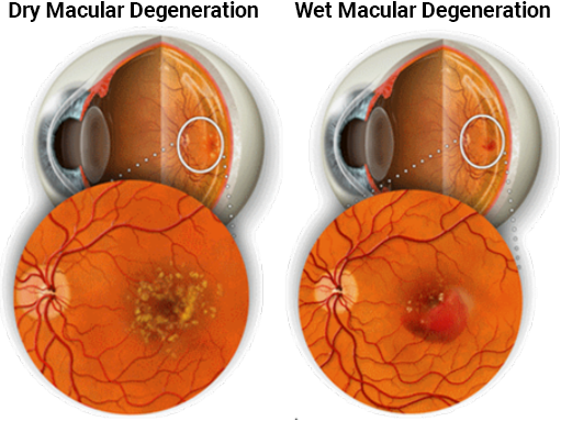 Dry and wet macular degeration