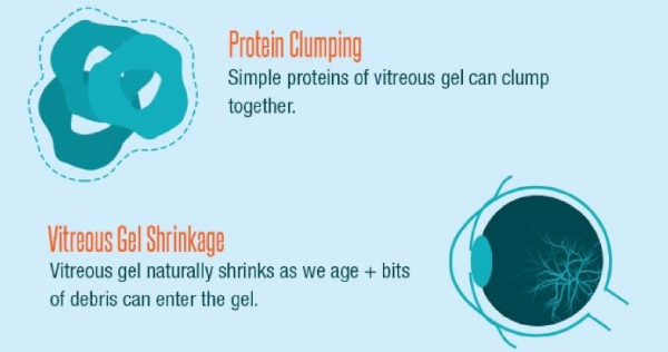 Protein CLlumping and Vitreous Gel Shrinkage